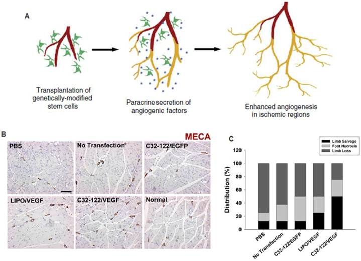 Therapeutic Angiogenesis For Treating Cardiovascular Diseases