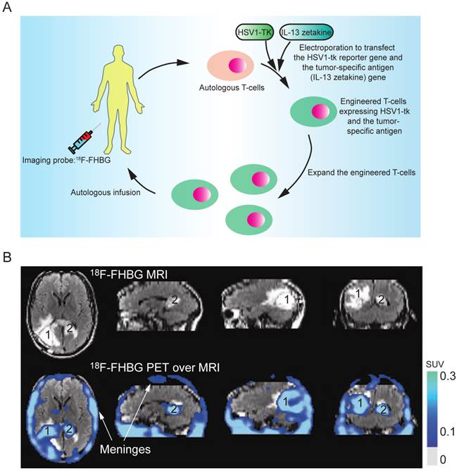 PET reporter genes that give even greater sensitivity for imaging than does HSV1-sr39tk 3