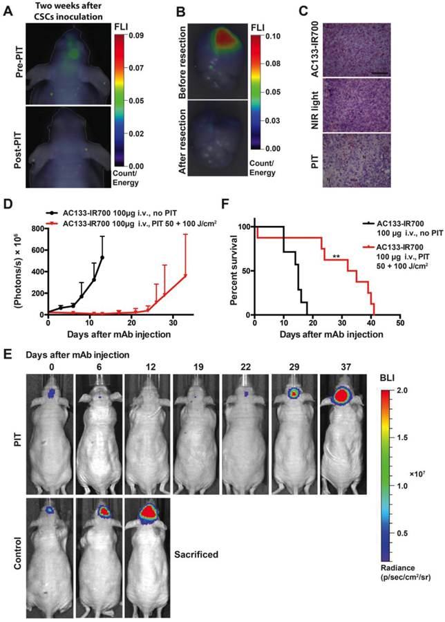Imaging And Selective Elimination Of Glioblastoma Stem