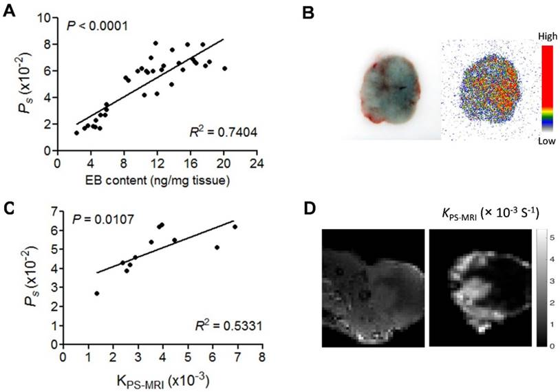 Tumor Quantification in Clinical Positron Emission Tomography