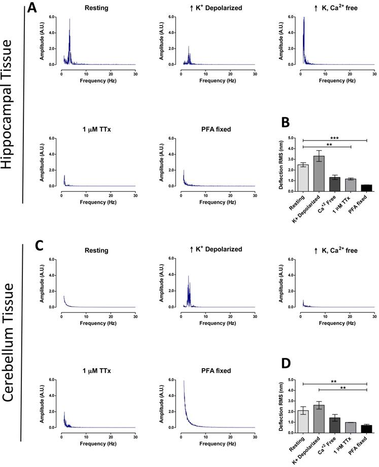 Vibrational Profiling of Brain Tumors and Cells