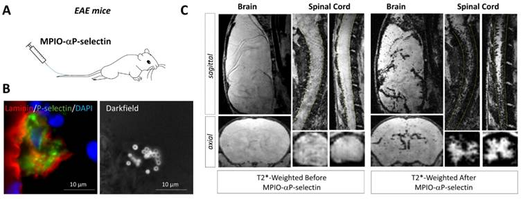 Molecular Magnetic Resonance Imaging of Endothelial