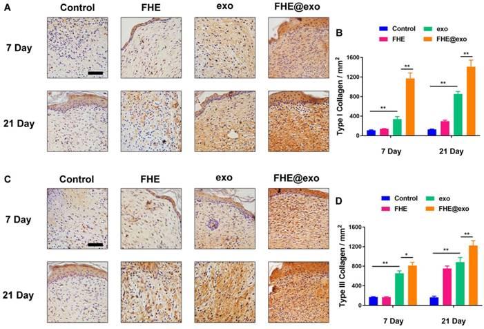 Engineering Bioactive Self-Healing Antibacterial Exosomes