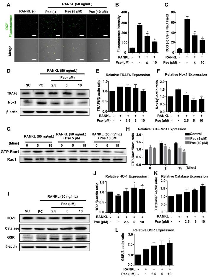 Pseurotin A Inhibits Osteoclastogenesis and Prevents Ovariectomized