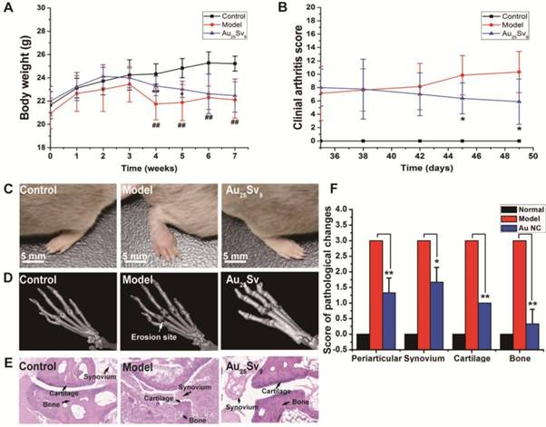 Gold Clusters Prevent Inflammation-Induced Bone Erosion