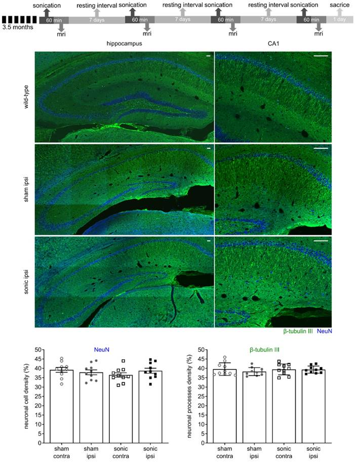 Unilateral Focused Ultrasound-Induced Blood-Brain Barrier