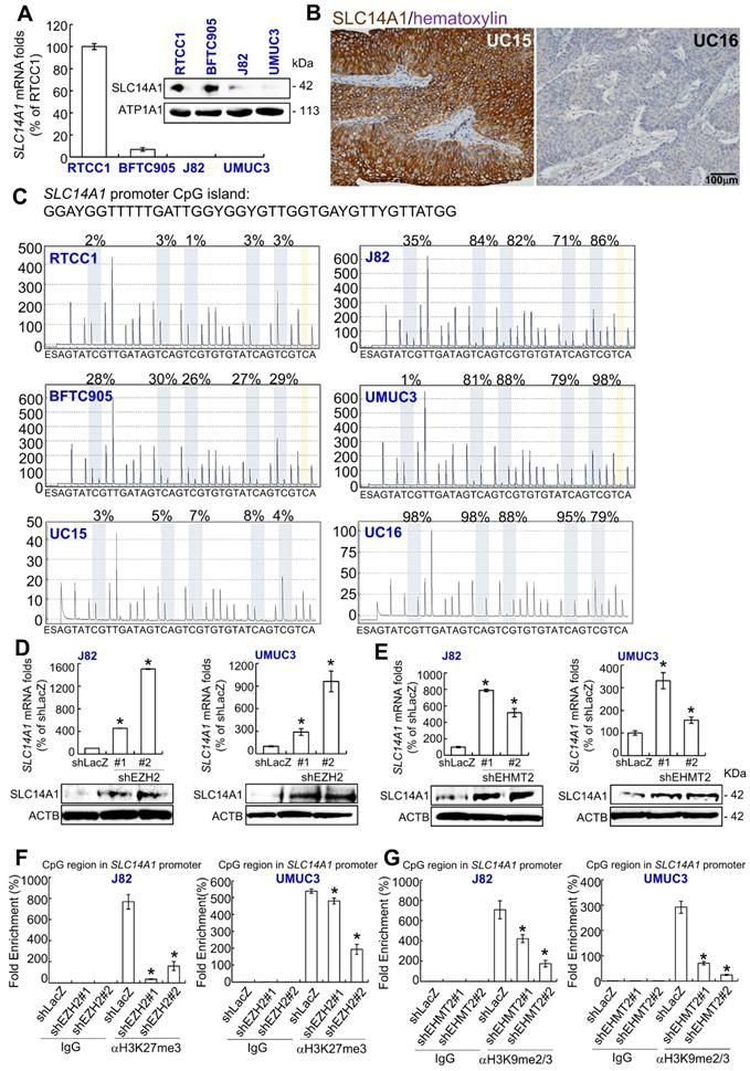 SLC14A1 prevents oncometabolite accumulation and recruits HDAC1 to ...